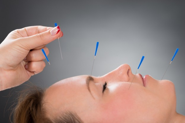 acupuncture NJ