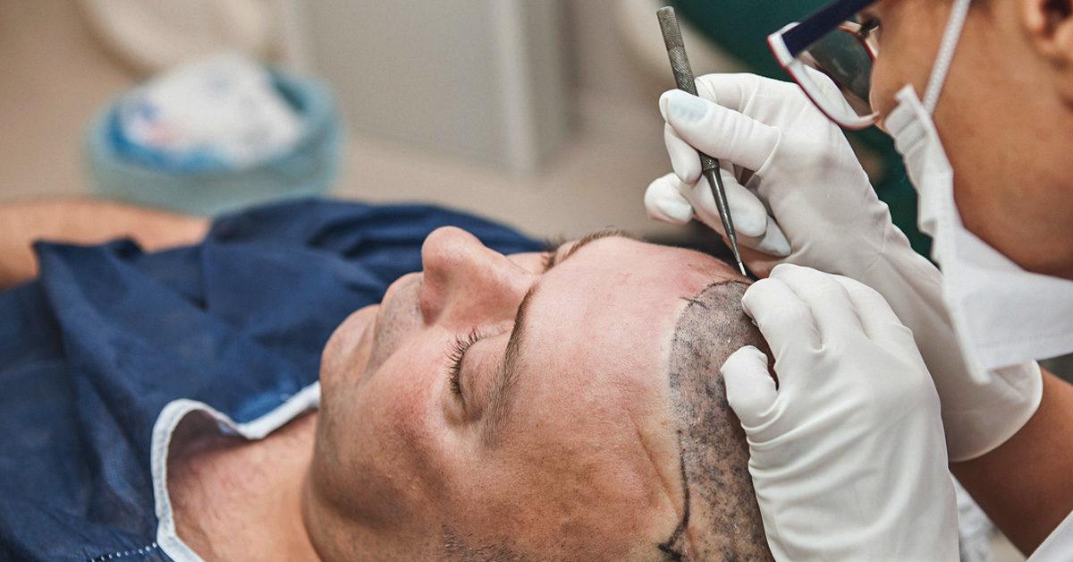 Post care after hair transplantation procedure