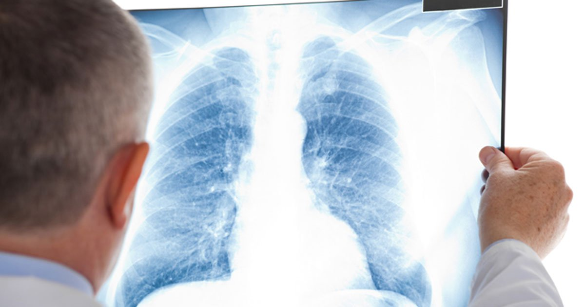 The details of Non-small cell lung cancer